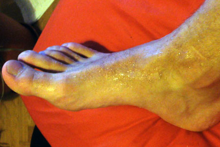 Excessive Sweating of the Feet / Plantar Hyperhidrosis